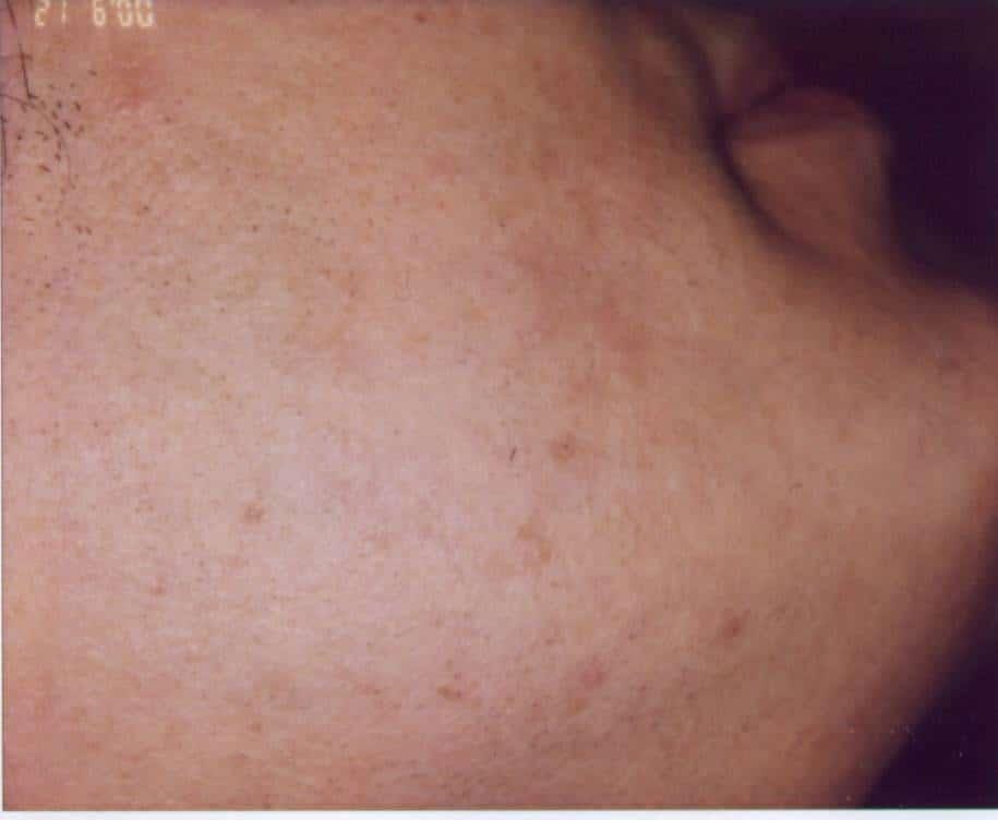 dupa 8 sedinte  de tratament cu epilare definitiva - fata