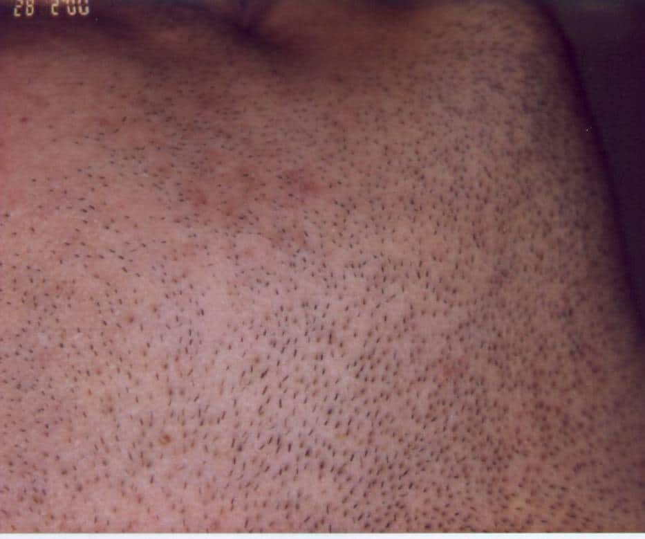 inainte de tratamentul cu epilare definitiva- fata