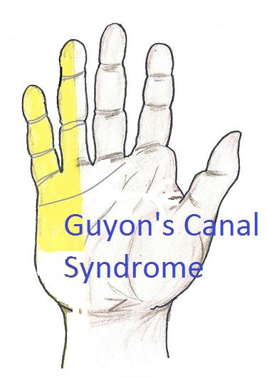 Teritoriul de inervatie senzitiva a nervului cubital la nivelul mainii