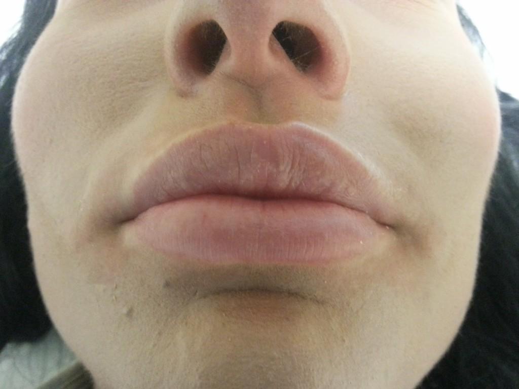 marirea buzelor cu acid hialuronic-aspect la 4 luni dupa injectare de Juvederm 3