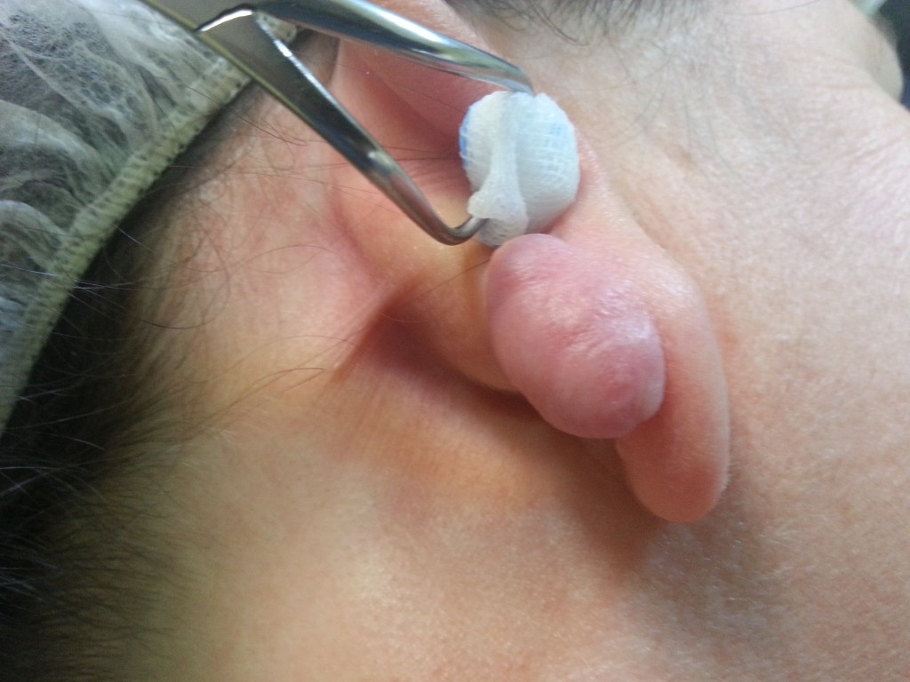 cicatrice keloida pavilion auricular drept- injectata cu corticoid