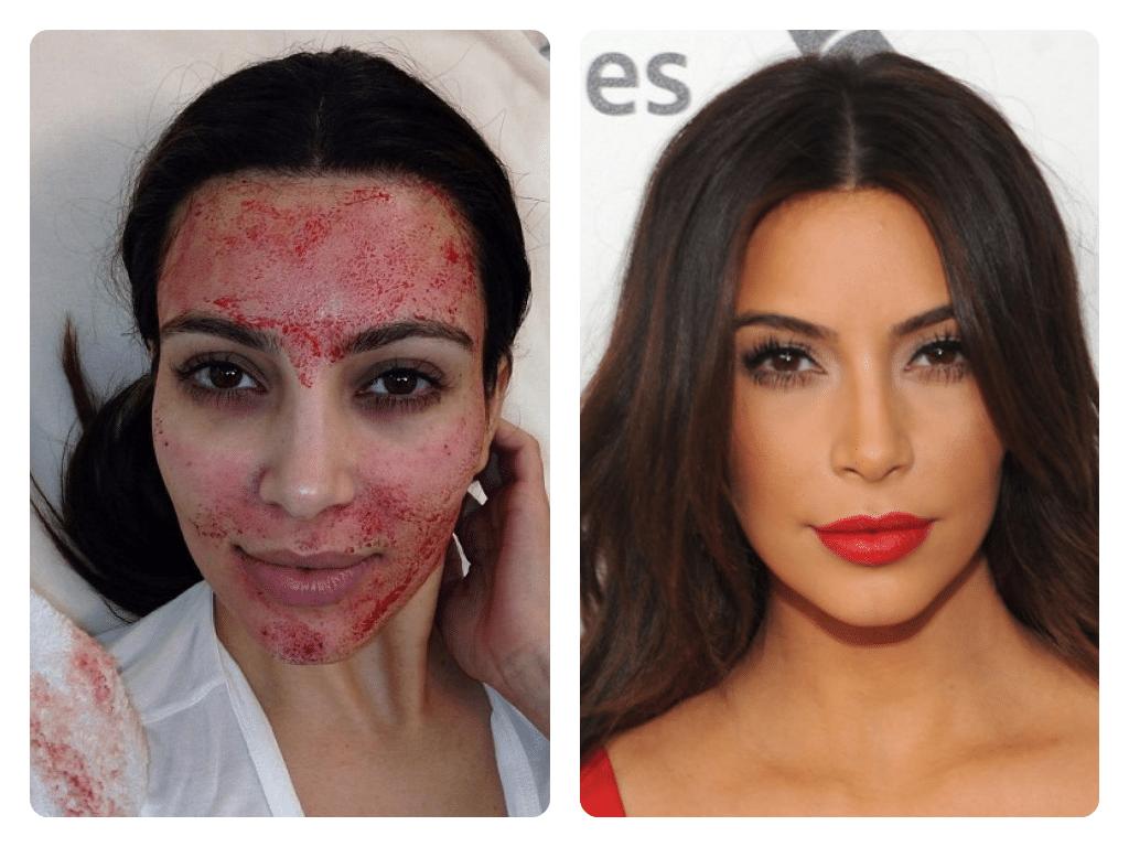 kim kardashian terapia vampir