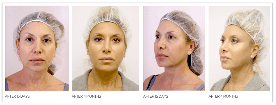rezultate liting facial fire de suspensie