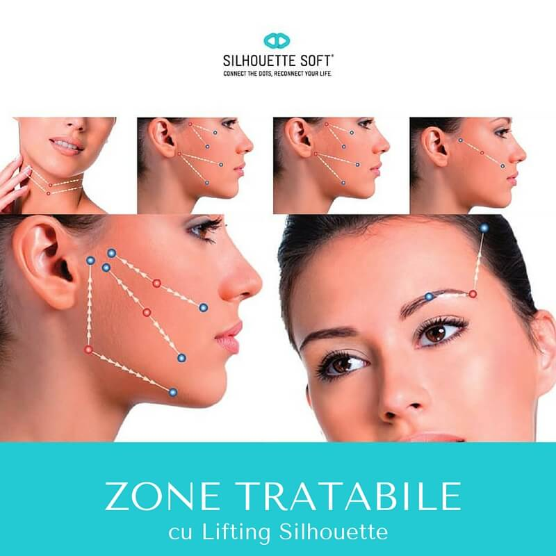 zone tratabile lifting facial nechirurgical