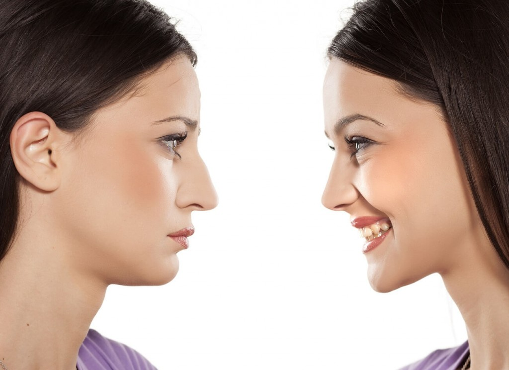comparatie operatie rinoplastie