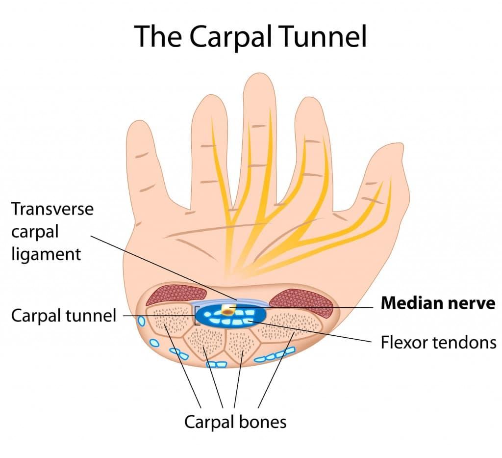 sindrom canal carpian operatie chirurgicala