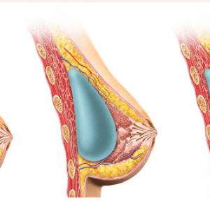 Implanturile mamare si alaptarea