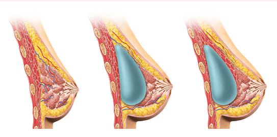 alaptarea cu implanturi mamare