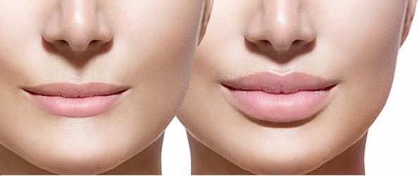 pret marire buze prin injectarea de acid hialuronic