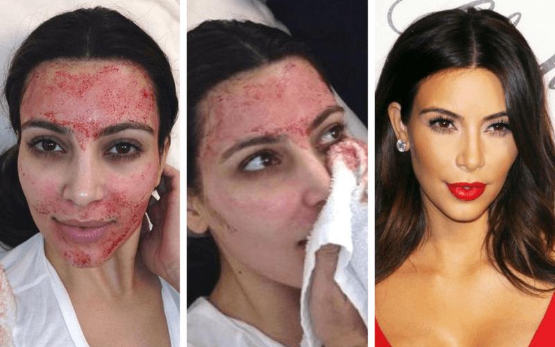 terapia vampir reintinerire faciala