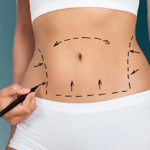 Totul despre abdominoplastie (micsorarea burtii)