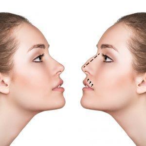 Operatia de Rinoplastie, corectarea si remodelarea nasului
