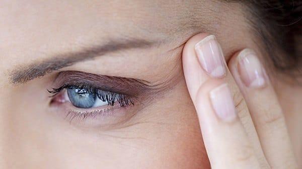 ridurile ochilor