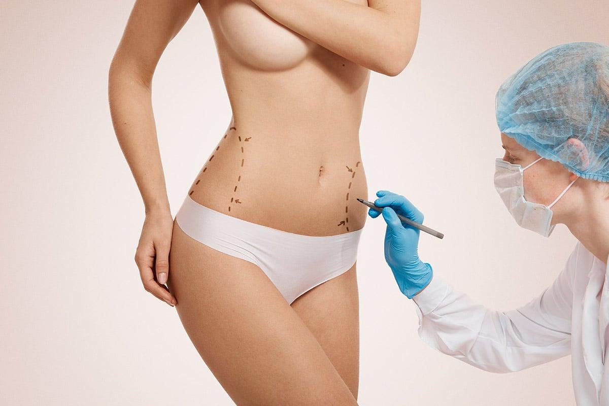 Chirurgia estetica dupa sarcina