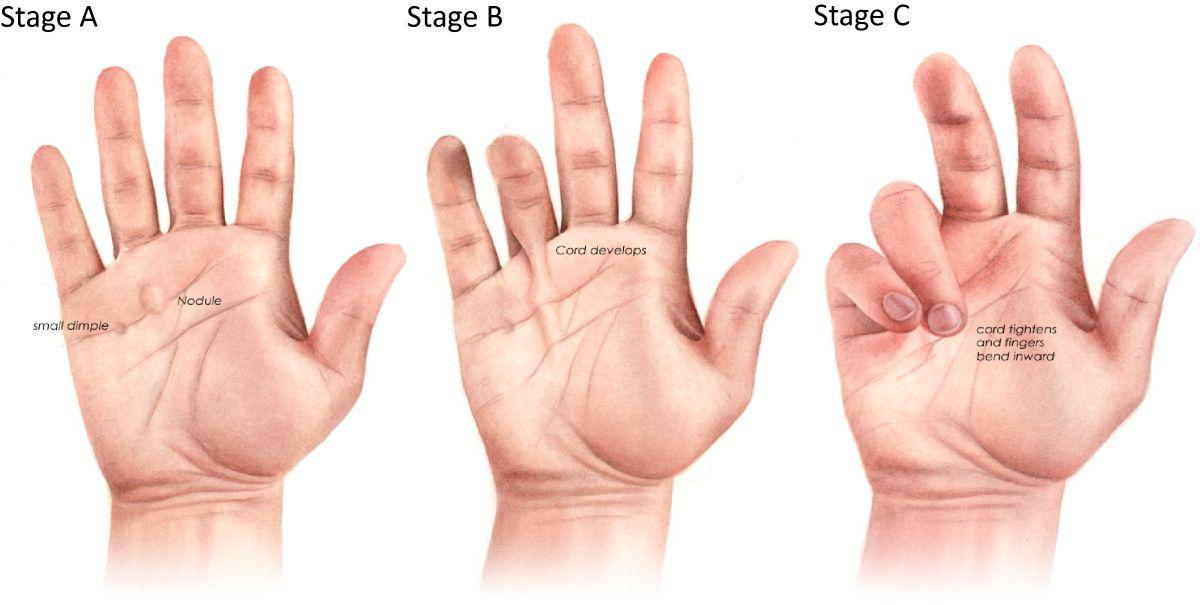 Boala articulației falangiene - experttraining.ro