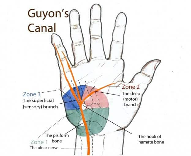 sindrom guyon canal