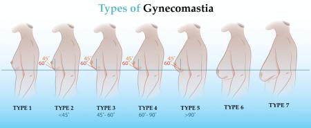 tipuri ginecomastie