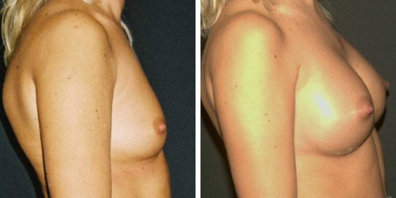 poze marirea sanilor cu implanturi