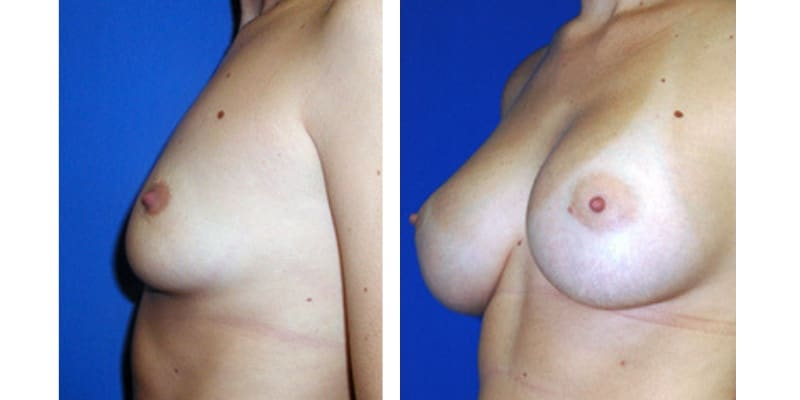 Marirea sanilor cu implanturi - Galerie foto
