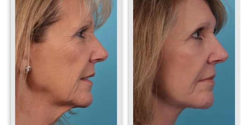 Galerie foto liposuctia faciala