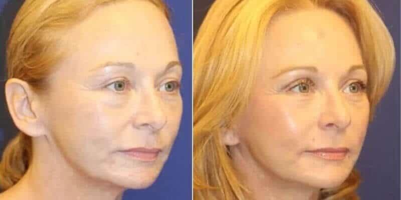 Rejuvenare faciala inainte si dupa caz 45