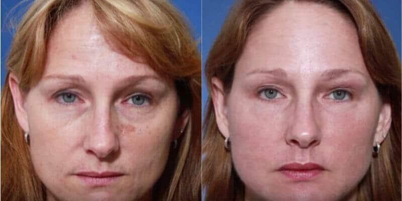Rejuvenare faciala inainte si dupa caz 57