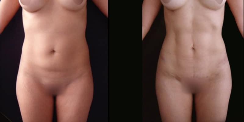 Abdominoplastie inainte si dupa caz 35-1