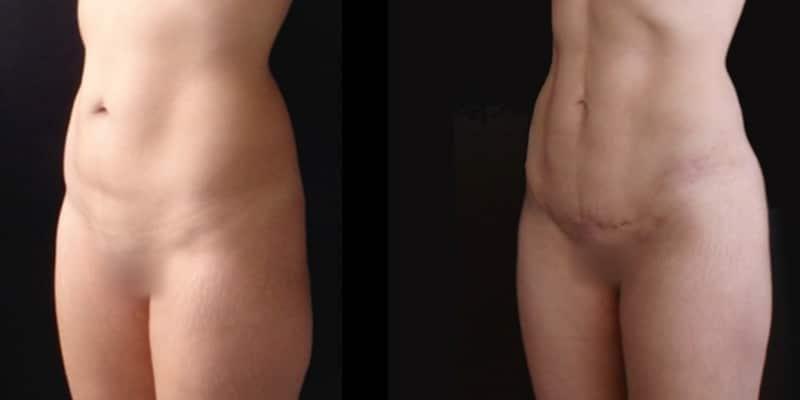 Abdominoplastie inainte si dupa caz 35-2