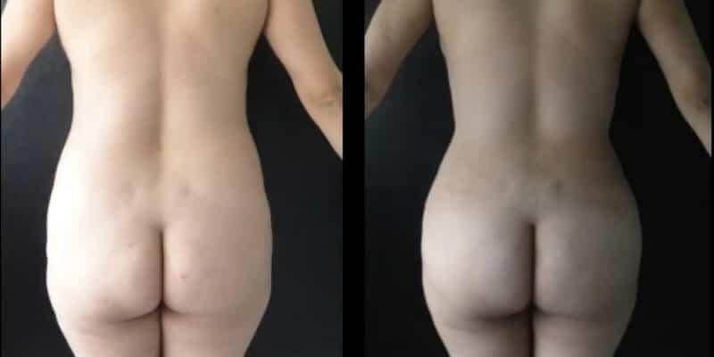 Abdominoplastie inainte si dupa caz 37-2
