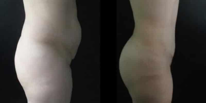 Abdominoplastie inainte si dupa caz 37-3