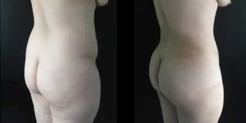 Abdominoplastie inainte si dupa caz 37-5