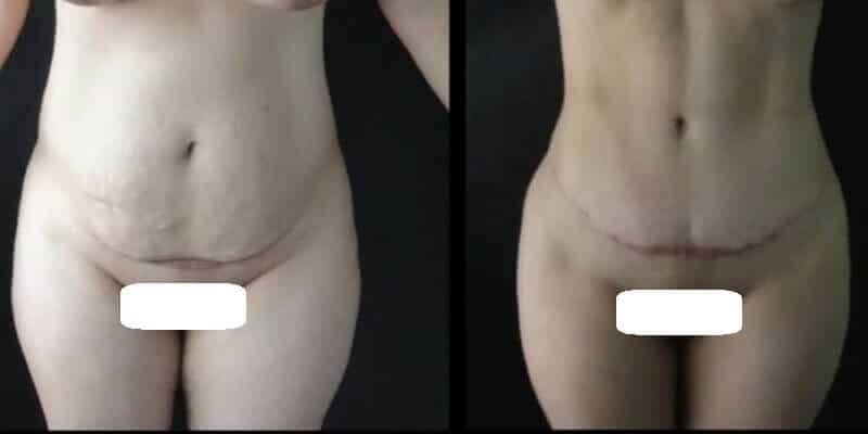 Abdominoplastie inainte si dupa caz 37-1