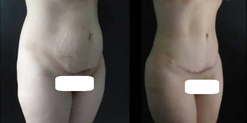 Abdominoplastie inainte si dupa caz 37-4
