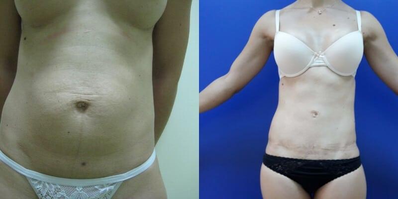 Abdominoplastie inainte si dupa caz 73-1