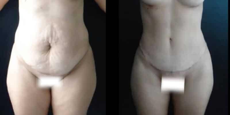 Abdominoplastie inainte si dupa caz 74-1