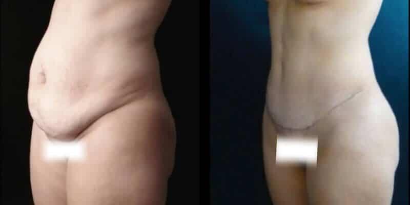 Abdominoplastie inainte si dupa caz 74-2