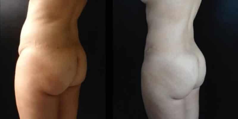 Abdominoplastie inainte si dupa caz 74-3