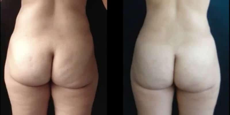 Abdominoplastie inainte si dupa caz 74-4