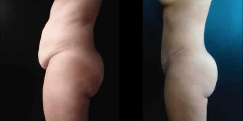 Abdominoplastie inainte si dupa caz 74-5