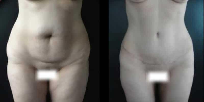 Abdominoplastie inainte si dupa caz 78-1