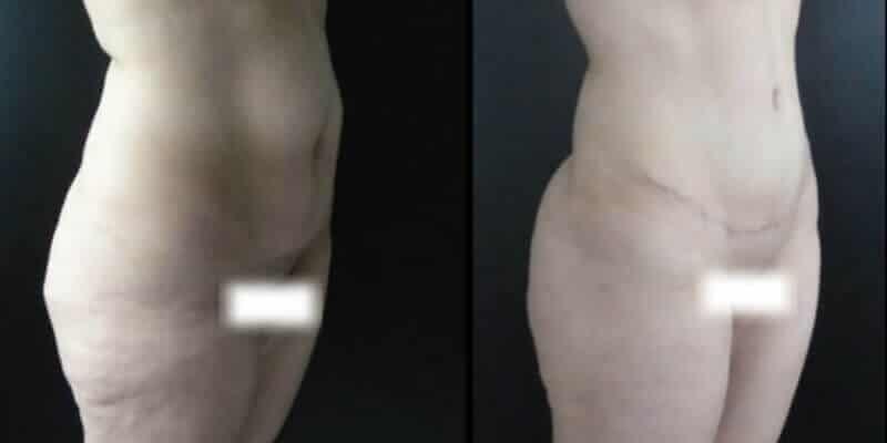 Abdominoplastie inainte si dupa caz 78-2