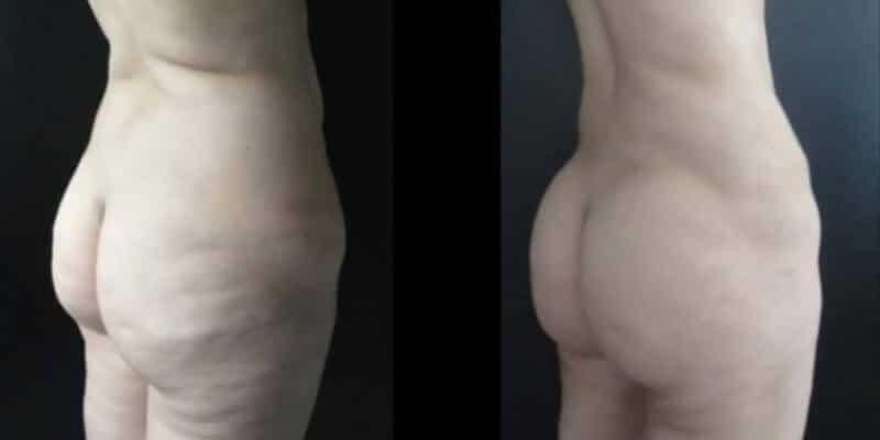 Abdominoplastie inainte si dupa caz 78-3