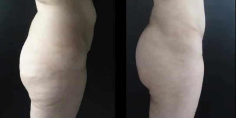 Abdominoplastie inainte si dupa caz 78-4