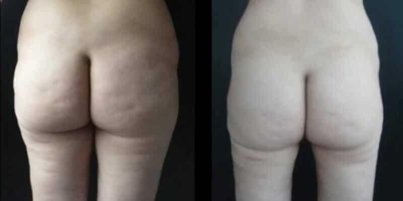 Abdominoplastie inainte si dupa caz 78-5