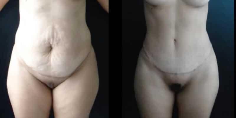 Abdominoplastie inainte si dupa caz 91-1