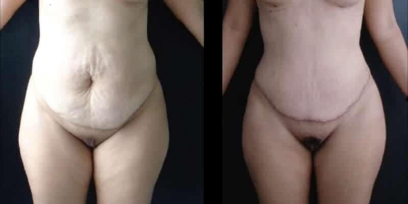 Abdominoplastie inainte si dupa caz 91-2