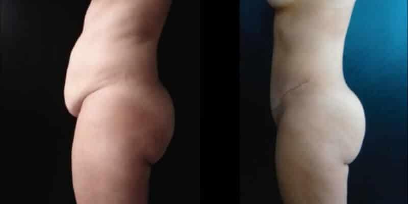 Abdominoplastie inainte si dupa caz 91-4