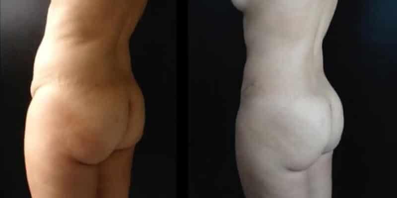 Abdominoplastie inainte si dupa caz 91-5