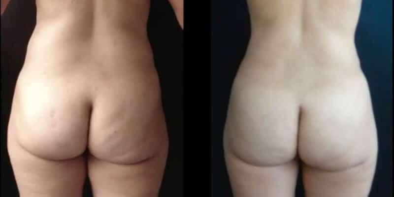 Abdominoplastie inainte si dupa caz 91-6
