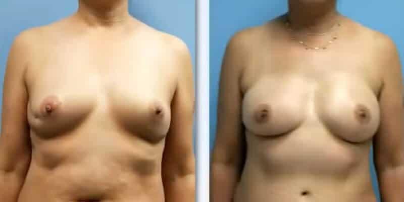 Asimetrie mamara inainte si dupa caz 43
